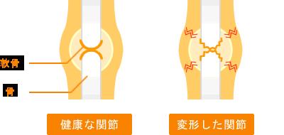 関節炎のメカニズム
